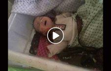 ویدیو مادر انفجار شفاخانه زابل 226x145 - ویدیو/ جستجوی یک مادر برای گمشده هایش در انفجار مقابل شفاخانه زابل