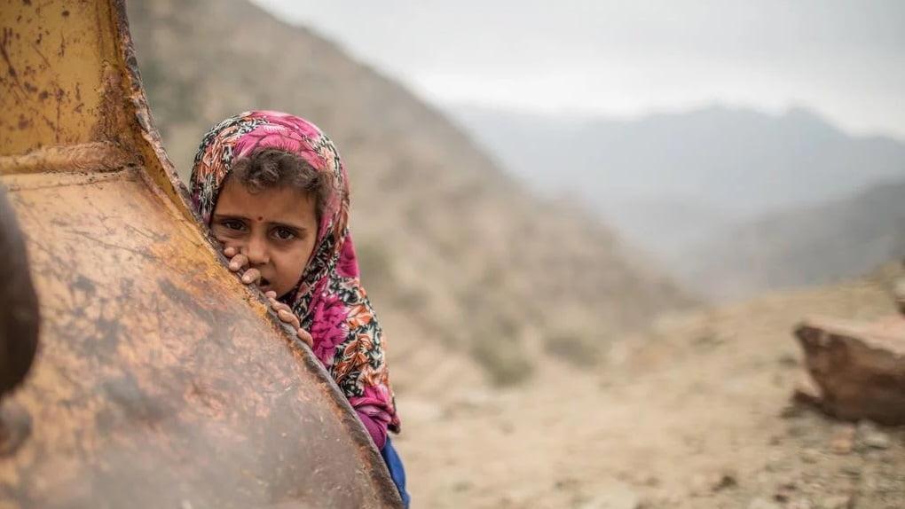 طفل یمنی - گزارشی تکان دهنده از تجاوز جنسی بالای اطفال یمنی