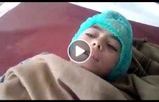 ویدیو زخمی طفل انفجار لغمان 226x145 - ویدیو/ زخمی شدن طفل بیگناه در انفجار امروز لغمان