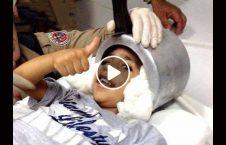 ویدیو نجات کودک سر دیگ گیر 226x145 - ویدیو/ نجات کودکی که سرش در دیگ گیر کرد