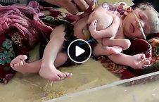 ویدیو نوزاد عجیب 3 دست 4 پا هند 226x145 - ویدیو/ ولادت نوزادی عجیب الخلقه با 3 دست و 4 پا در هند