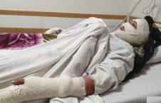 زن 226x145 - خشونت بالای یک زن در ولایت بامیان