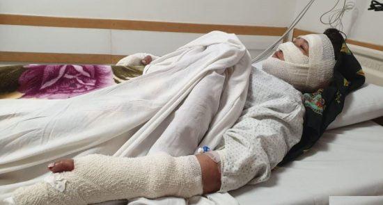زن 550x295 - خشونت بالای یک زن در ولایت بامیان