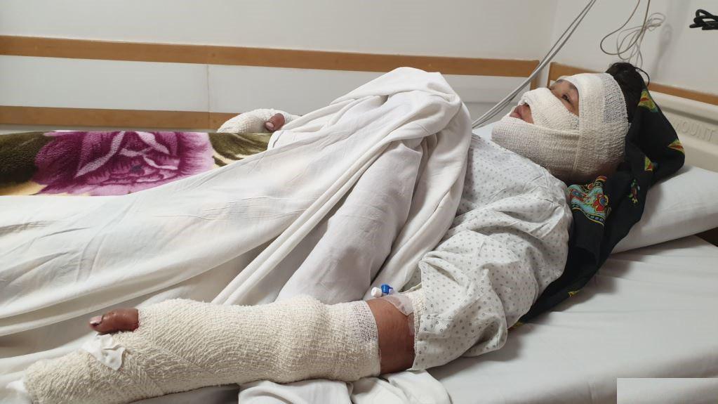 زن - خشونت بالای یک زن در ولایت بامیان