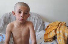 فضل احمد 10 226x145 - تصاویری تکان دهنده از شکنجۀ یک کودک از سوی پدرش (18+)