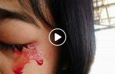 ویدیو دختر هندی خون گریه 226x145 - ویدیو/ این دختر هندی خون گریه می کند