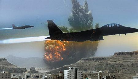 طیاره جنگی - حمله هوایی ایتلاف سعودی بالای یک مرکز قرنطینه در یمن