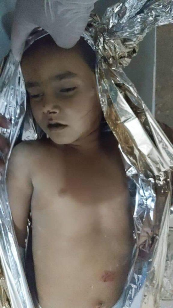 طفل شهید 1 576x1024 - تصویر/ قتل اطفال بی گناه افغان توسط پاکستانی ها (18+)