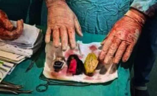 جراح مصری - وجود حیرت انگیز اجسام خارجی در بطن یک مریض مصری + تصویر