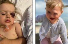 میلی براون 1 226x145 - طفل ۲ ساله ای که به جای اشک خون گریه میکند + تصاویر