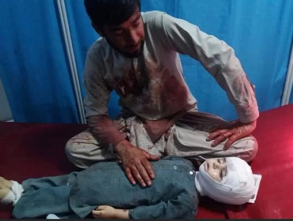 جنگ قربانی - تصویری دردناک از قربانیان جنگ در افغانستان