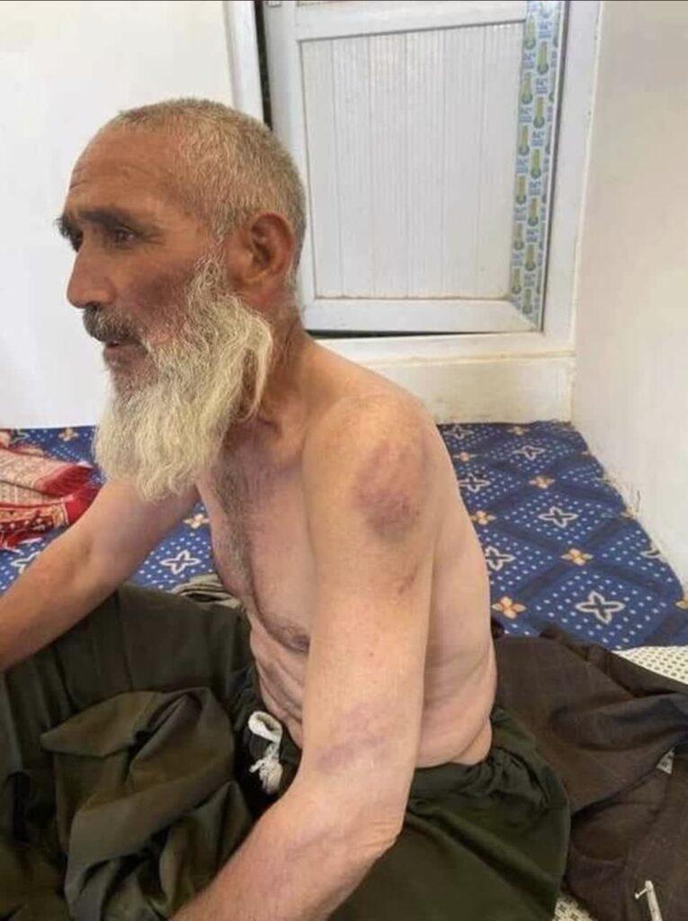 شکنجه پیرمرد طالبان 765x1024 - تصویر/ شکنجه یک پیرمرد ۸۰ ساله توسط طالبان در فاریاب