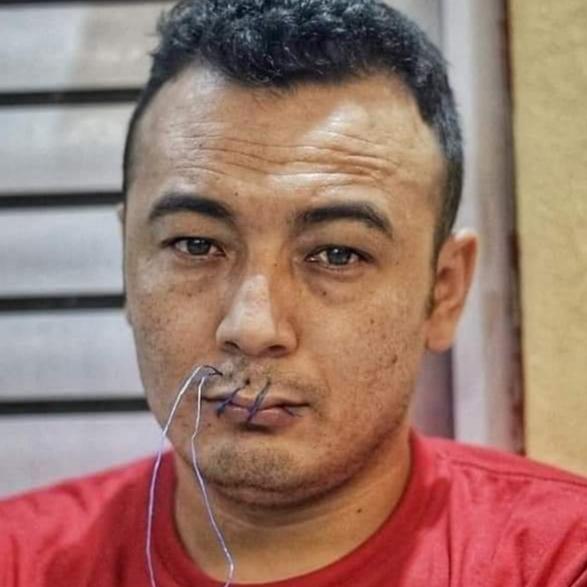 خداداد غلامی - اعتراض متفاوت به بیتوجهی سازمان ملل به وضعیت پناهجویان افغان در اندونزیا