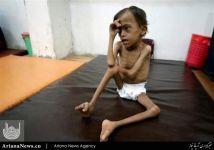 جنایت آل سعود یمن (1)